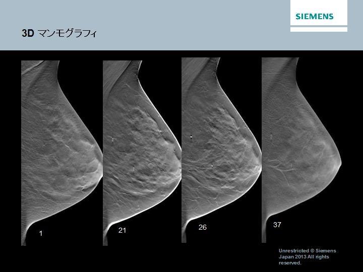 3Dマンモグラフィは,撮影角度を変えて何枚も撮影し,3次元的に観察することにより,乳腺の重なりは排除され病変の判定が従来以上に容易になります.